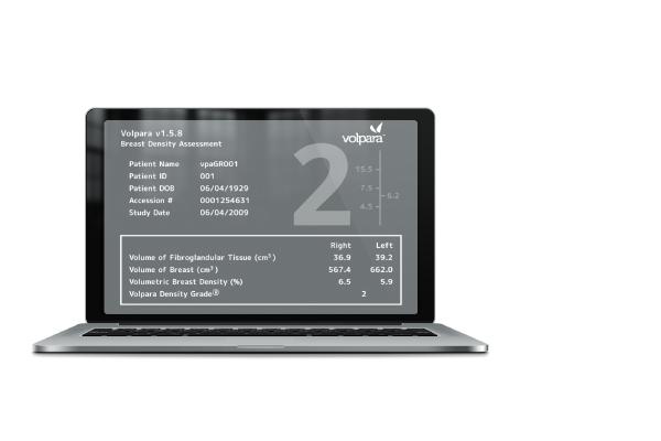 Volpara Density Software