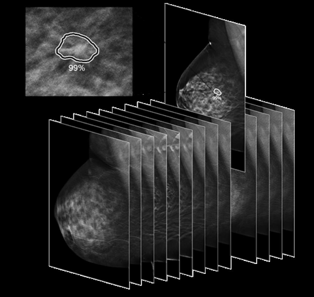 ProFound AI Wahrscheinlichkeit eines Fundes von Brustkrebs in Prozent
